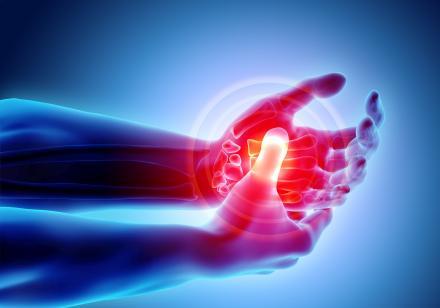 Arthritis Gyógyfű