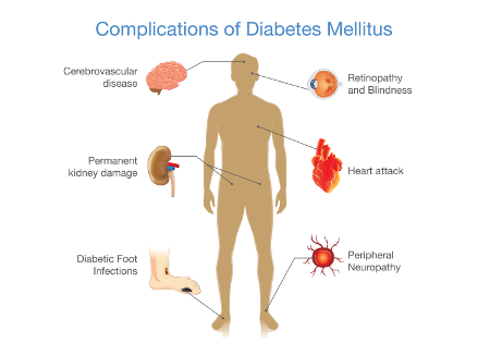 Cukorbetegség érrendszeri szövődmény