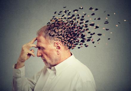 Alzheimer tiz jele