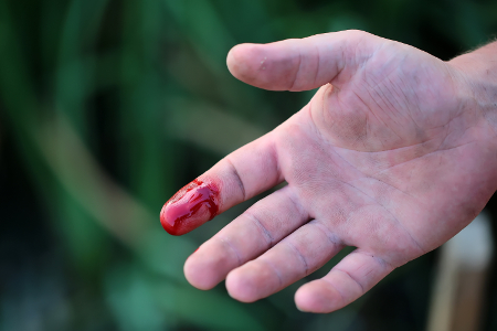 Vérzékenység