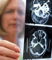 agyműtét