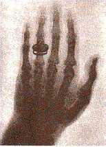 röntgenkép, Bertha Röntgen keze