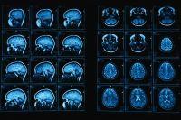 depresszió mágneses terápia mágnesterápia agy