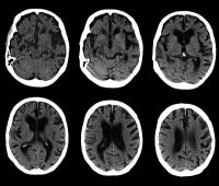 Alzheimer-kór, kétnyelvűség
