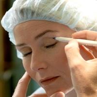 blepharoplasztika, szemhéj, műtét