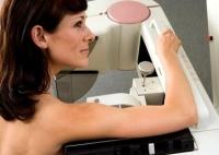 mammográfia, nő, mellrák