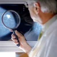 mammográfiás leletet vizsgáló orvos, mellrák, mammográfia