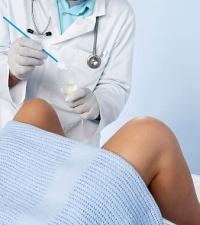 nőgyógyászati rákszűrés