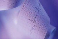 szívinfarktus, véralvadás, dízelmotor