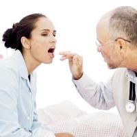 influenza, orvos