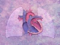 vérző szív, szívinfarktus, szívizom