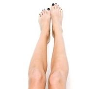 felpolcolt női láb, visszér, ráadiófrekvenciás, kezelés