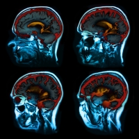idegrendszeri, sérülés, rehabilitáció