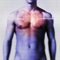 infarktus, szívinfarktus, EKG, mágneses rezonancia