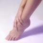 női láb, visszérbetegség, visszerek